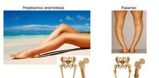 Споредба помеѓу нормални и рахитични коски