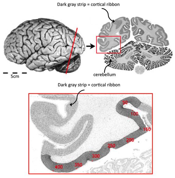 Слика 1. Кортикална лента. Горе лево: Фотографија на постмортем мозок отстранет од черепот. Горе десно: Пресек на мозокот долж црвената линија од лево. Горната половина на пресекот ги прикажува десната и левата хемисферa на мозочната кора. Кортикалната лента е темната контура што се гледа долж периметарот на секоја хемисфера. Долната половина од секцијата (мрежестите линии) е церебелумот. Долу: Ова е зголемена слика од секцијата во рамките на црвениот квадрат од горе. Деловите на кортикалната лента се означени со броеви. Замислете си ја кортикалната лента како патека од сива маса што ја обиколува белата маса, за која ќе зборуваме во идните постови. Слика адаптирана од 1.